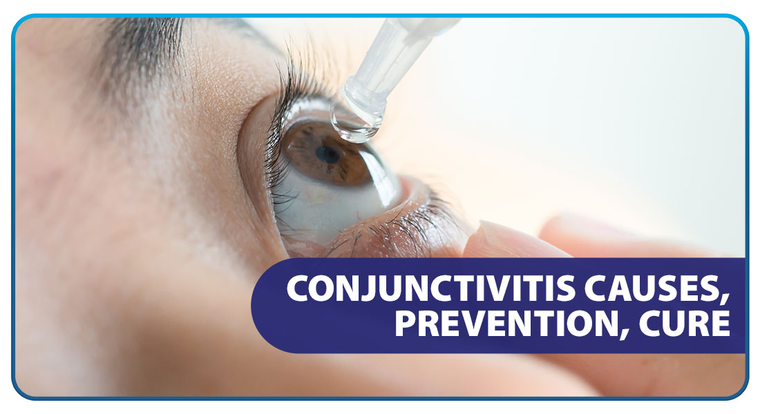 Conjunctivitis: Causes, Prevention, Cure