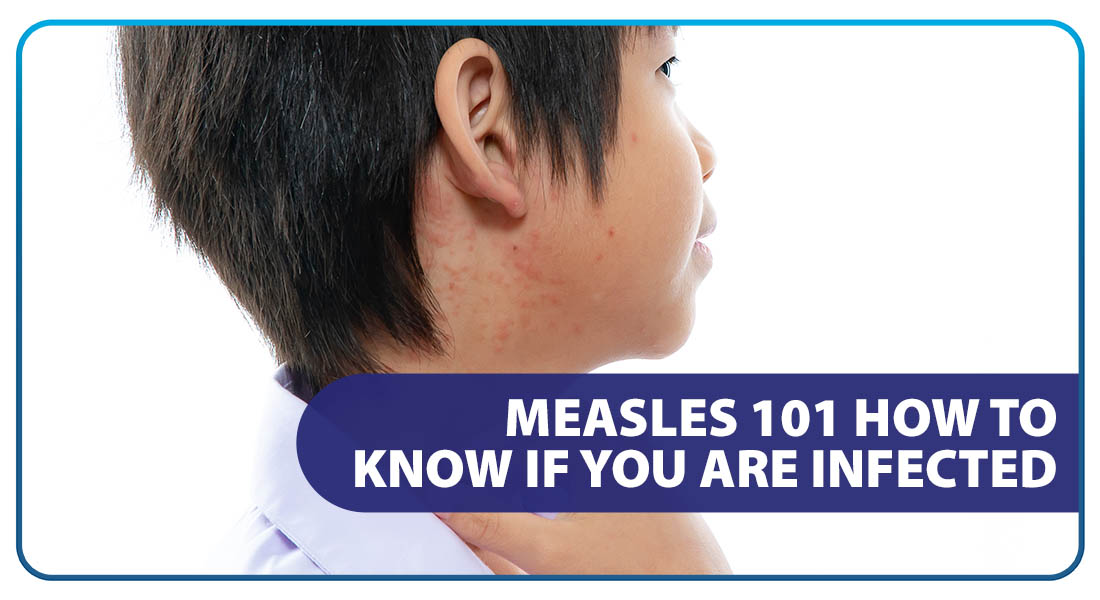 Measles 101: How to Know if You Are Infected
