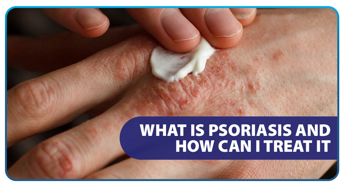 What is Psoriasis and How Can I Treat It