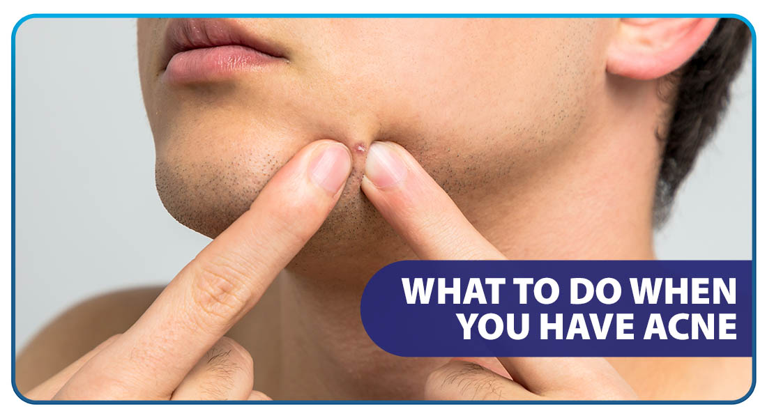 What to Do When You Have Acne