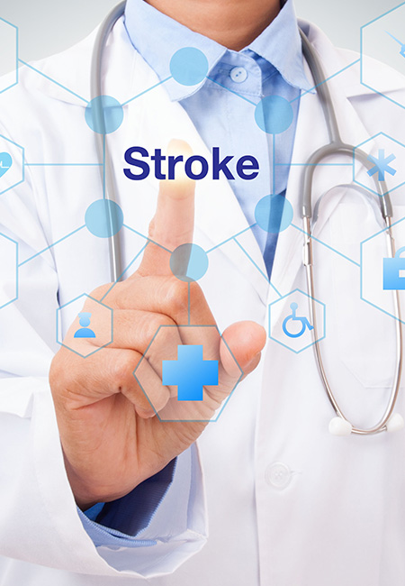 How to Know if You're Having a Stroke
