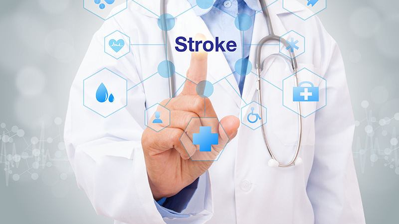 How to Know if Youre Having a Stroke